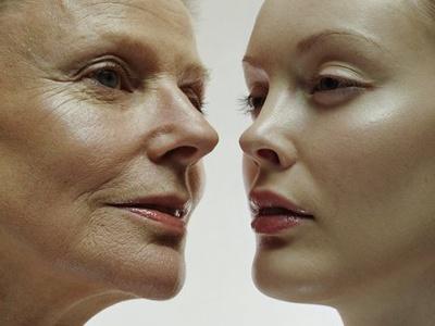 Нити красоты. Тредлифтинг — инновации в косметологии