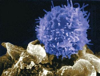 Микробиологи предлагают новое средство для профилактики рака