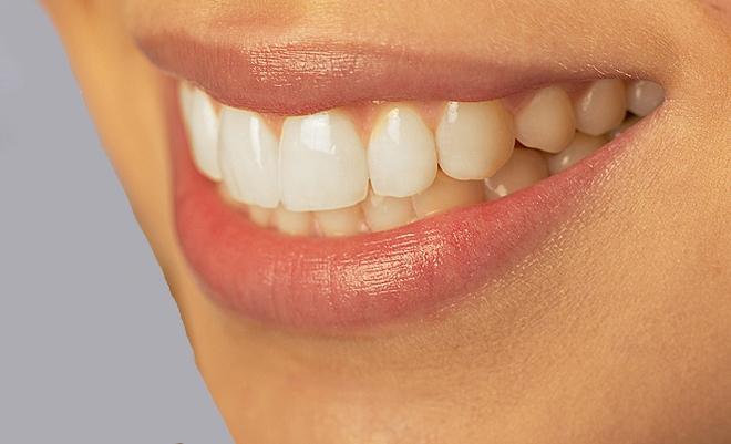PearlCeram — «жемчужная» технология реставрации зубов